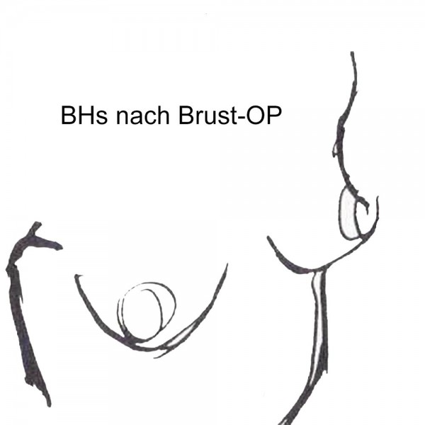 sport-bhs-f-r-Brust-OP-1